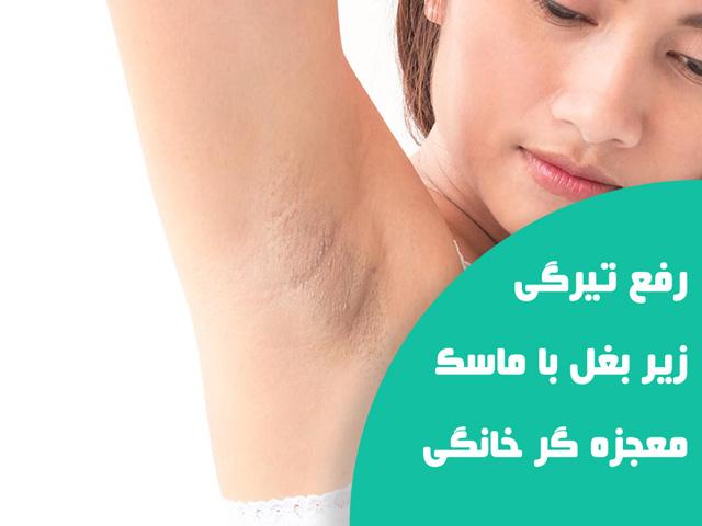 رفع تیرگی زیر بغل و راه درمان فوری تیرگی زیر بغل