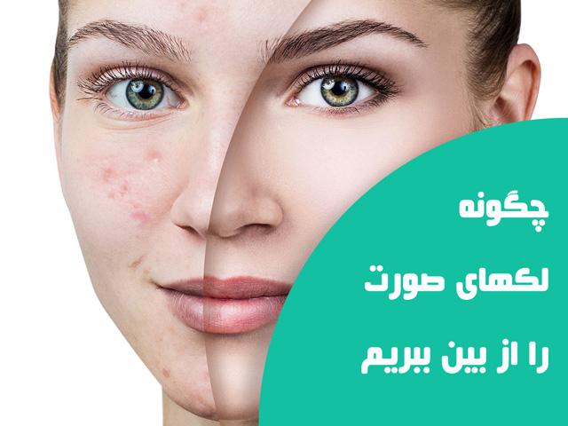درمان و رفع لکه های صورت