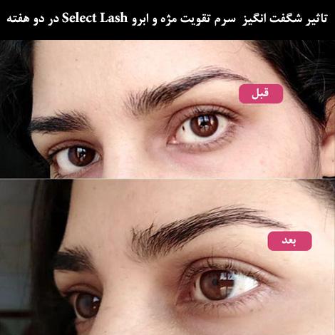 تاثیر سرم تقویت رشد مژه Select Lash